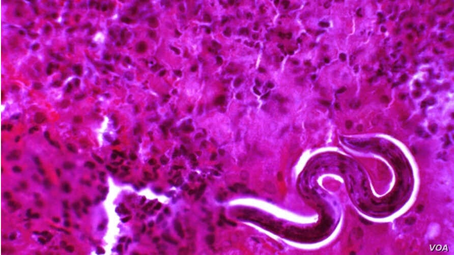 Roundworm larva mature in the liver before migrating to the lungs.