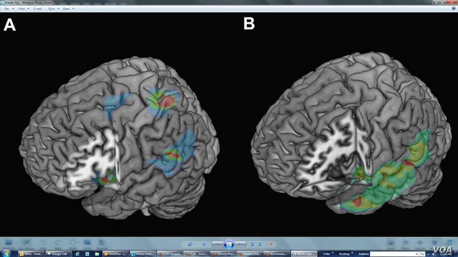 Lesion overlap analysis for the FoP group (A) revealed three regions where overlap was maximal: temporo- parietal, insular, and especially (when comparing to a control group, B) fronto -parietal cortex. ©Current Biology