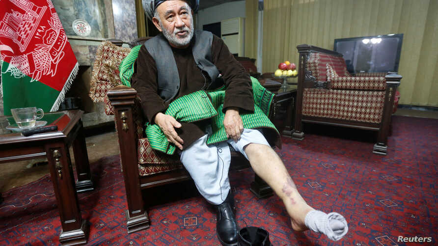 Ahmad Ishchi, who is alleged to have been beaten and detained by Afghanistan's first vice president, Abdul Rashid Dostum, last month, displays an injury on his leg during an interview at his home in Kabul, Afghanistan, Dec. 13, 2016. Dostum denied ab...