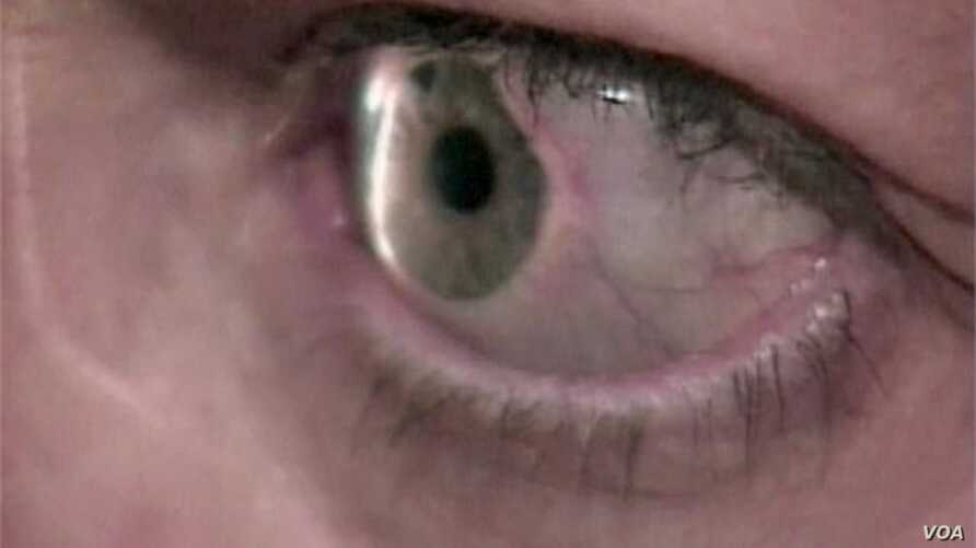 Glaucoma, A Stealth Disease And Major Cause of Blindness
