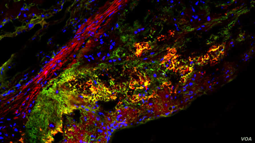 A new study shows that a type of natural sugar called trehalose triggers an important cellular housekeeping process in immune cells that helps treat atherosclerotic plaque.
