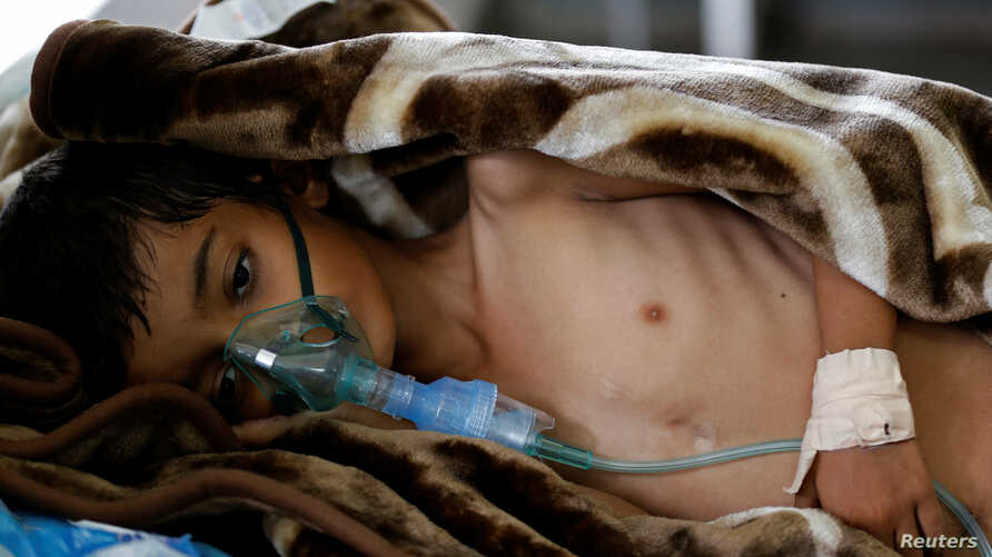 FILE - An 8-year-old malnourished boy lies on a bed in the emergency ward of a hospital in Sanaa, Yemen, Sept. 27, 2016.