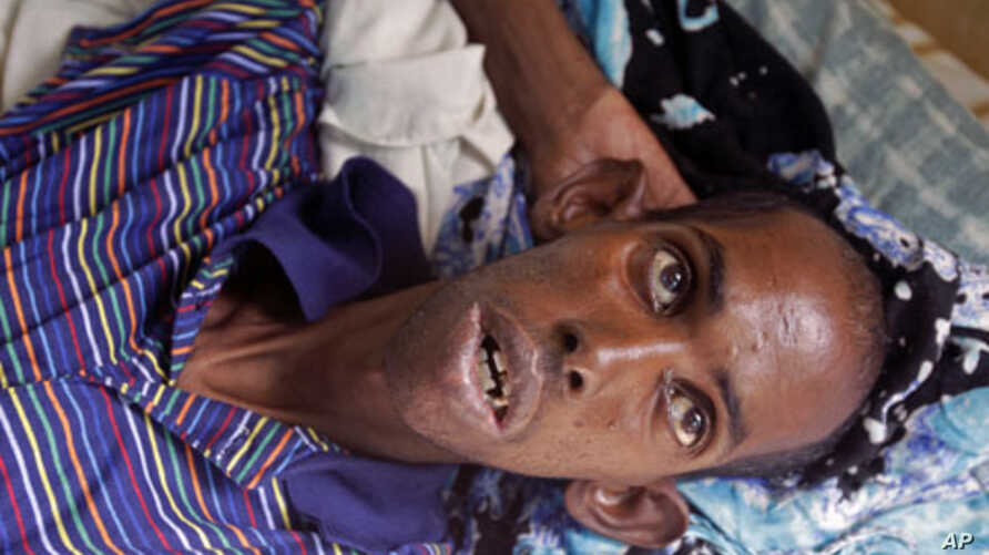 A malnourished refugee from Somalia at a field hospital of the International Rescue Committee, IRC, in Dadaab, Kenya, Wednesday, Aug. 3, 2011.
