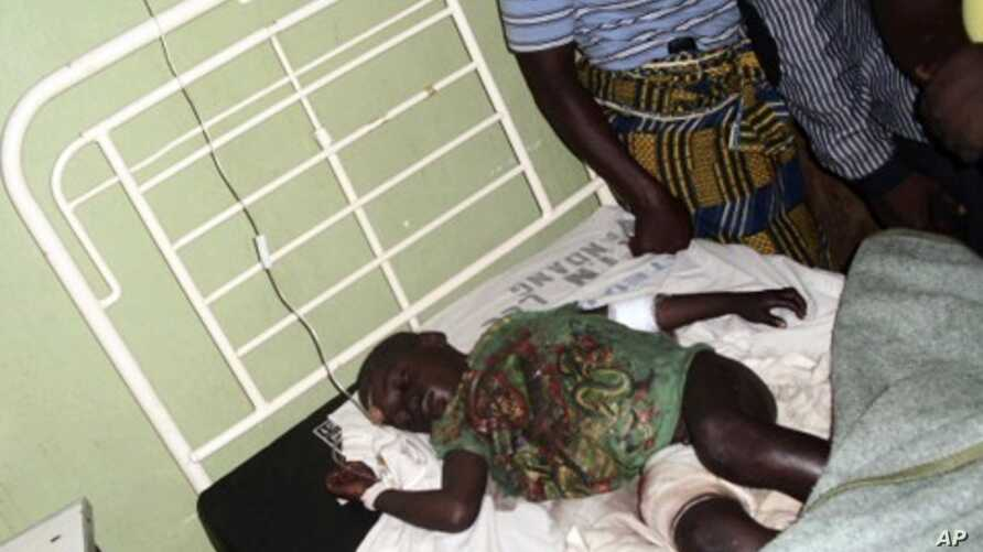 A boy, the only survivor of an overnight gang attack in the village of Vwang Fwil, lies on a hospital bed in the Nigerian central city of Jos, September 10, 2011.