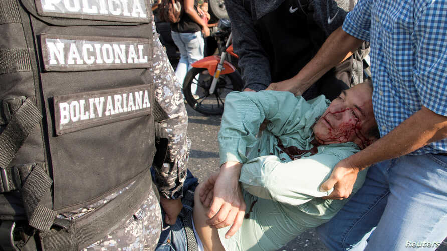 Teodoro Campos, opposition lawmaker and security chief of Venezuelan presidential candidate Henri Falcon, receives help after sustaining injury during a rally with Falcon, in Caracas, Venezuela, April 2, 2018.