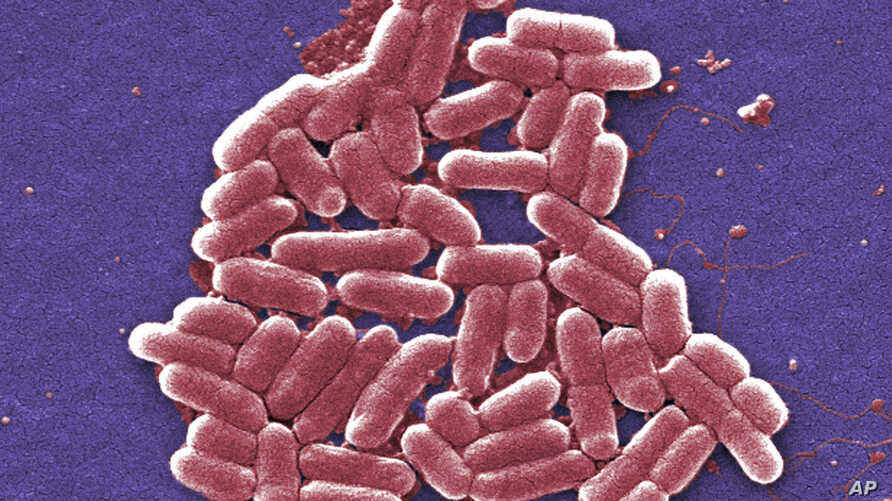 FILE - This 2006 colorized scanning electron micrograph image made available by the Centers for Disease Control and Prevention shows a strain of the Escherichia coli bacteria. E. coli is one of the germs that can cause sepsis.