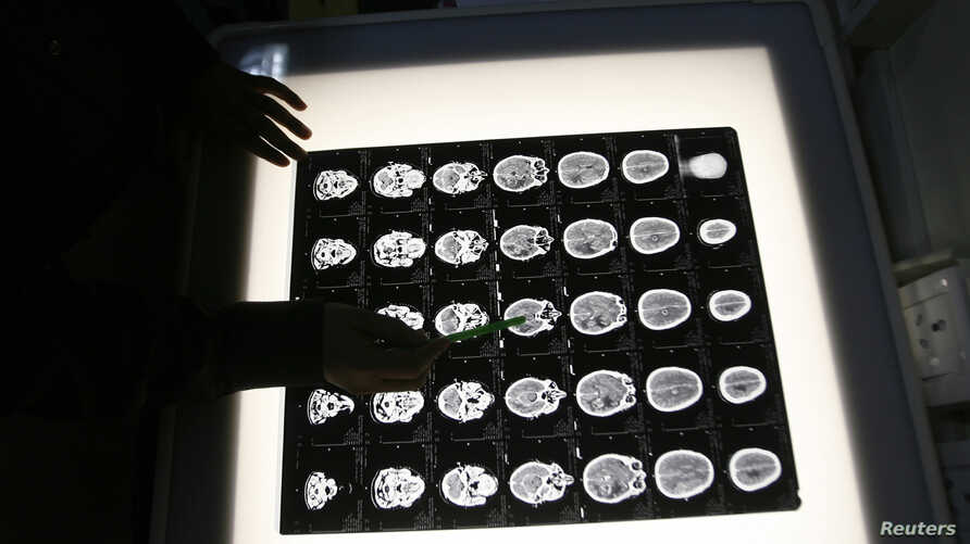 A radiologist examines the brain X-rays of a patient who underwent a cancer prevention medical check-up at the North Bengal Oncology Center, a cancer hospital, on the outskirts of the eastern Indian city of Siliguri February 25, 2009. REUTERS/Rupak D