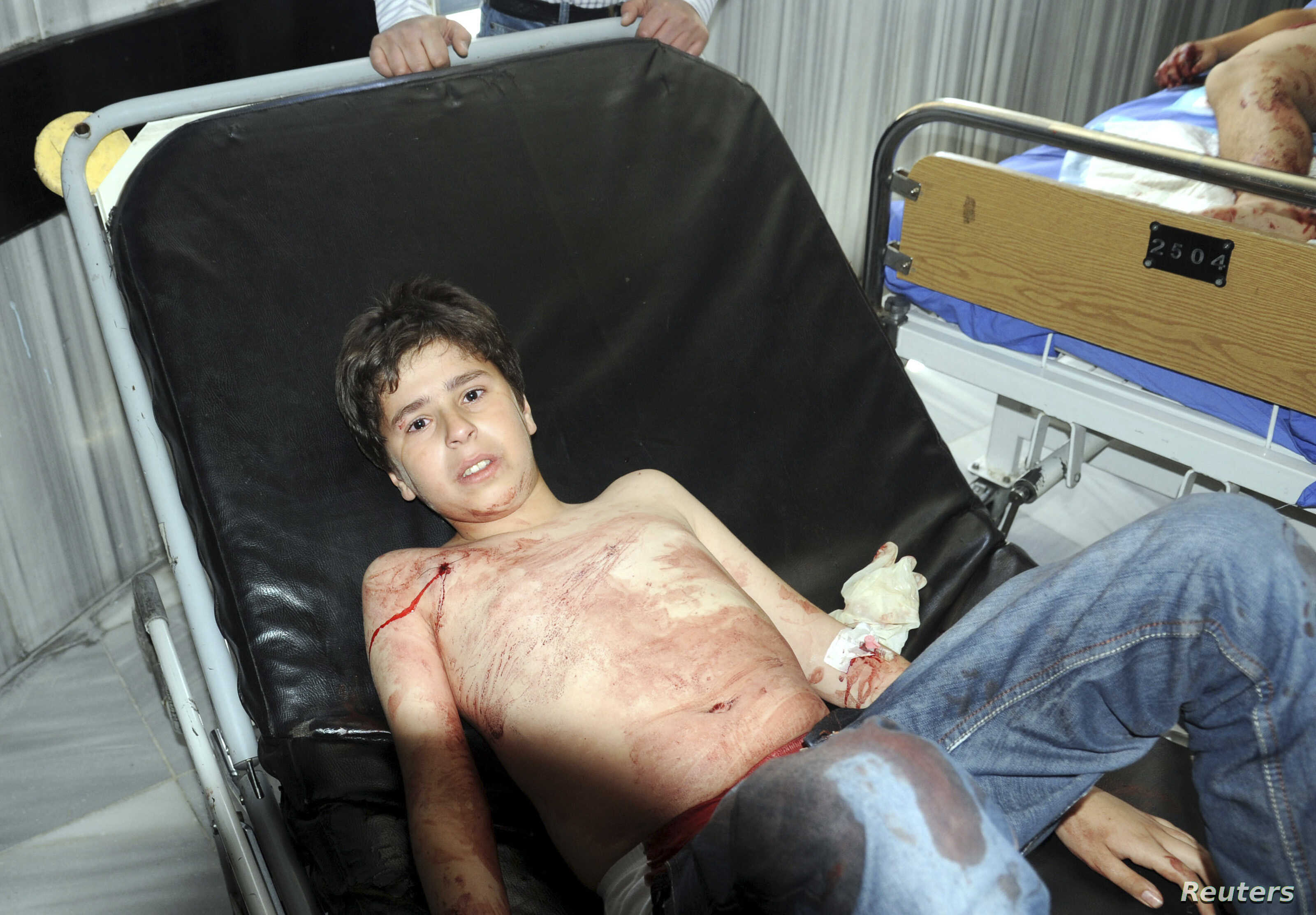A boy who was injured after mortar bombs landed on two areas in Damascus is seen in a hospital, April 29, 2014.