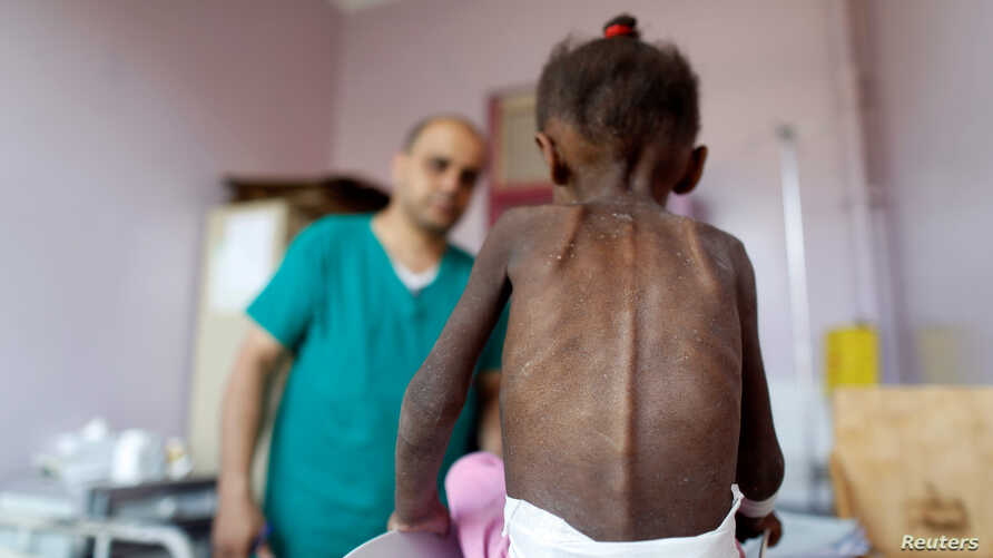 FILE - A nurse looks as he weighs a malnourished girl at a malnutrition treatment center in Sanaa, Yemen.