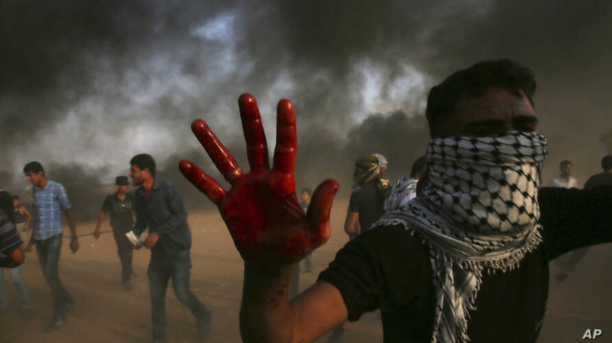 A protester shows his bloody hand while helping a wounded youth as others burn tires near the fence of the Gaza Strip border with Israel east of Khan Younis, southern Gaza Strip, Oct. 19, 2018.