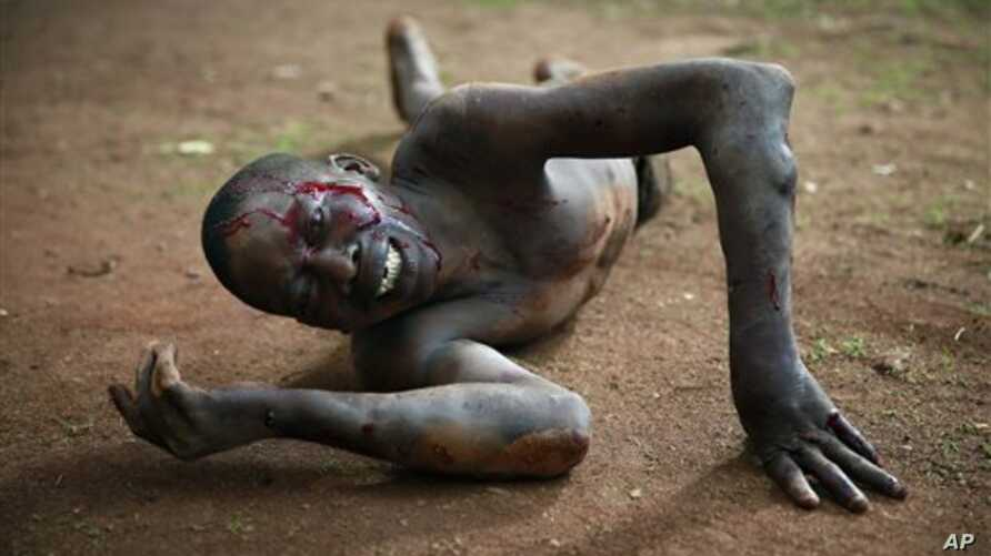 AP10ThingsToSee - Kevin, a man accused of being a thief by civil servants at the Work Inspection office, lies in pain after being attacked by a man with a machete and sticks in plain view of others in Bangui, Central African Republic on Friday, April