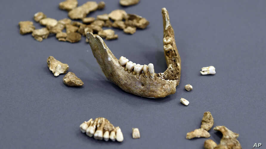 The bone fragments of Capt. William West is displayed at the Smithsonian's National Museum of Natural History in Washington, July 28, 2015.