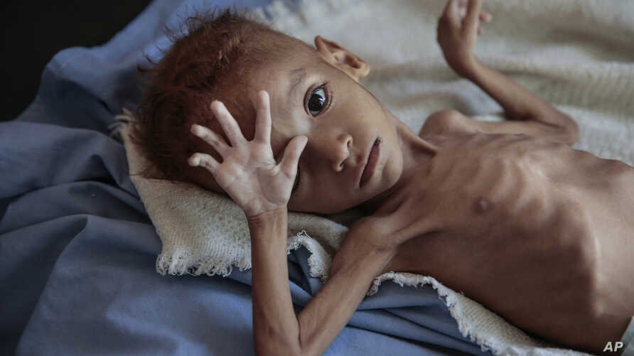 FILE- a severely malnourished boy rests on a hospital bed at the Aslam Health Center, Hajjah, Yemen.