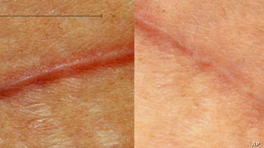 Volunteer patient who had abdominal surgery, with the left side showing the incision closed normally and the right side showing the incision closed with the new scar-reducing bandage