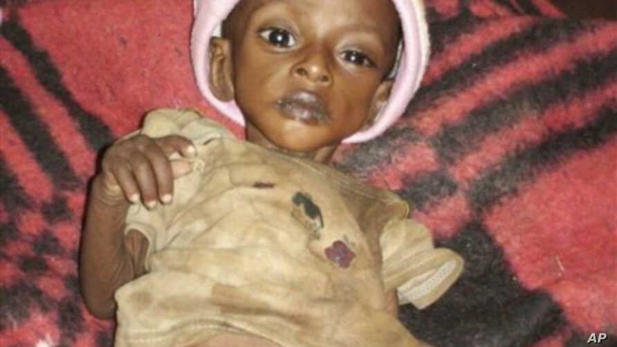 Ethiopian child Bizunesh Hidana 3-year-old weighing less than 10 pounds (four kilograms) is seen at an emergency feeding center in southern Ethiopia (File Photo).