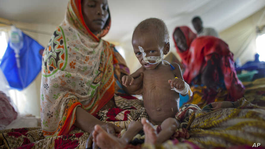 FILE - Zara Mahamat, suffering from malnutrition and fever, receives treatment through a nasal feeding tube accompanied by her mother, in an intensive care tent at the hospital in N'Gouri, a desert village in the Sahel belt of Chad, April 18, 2012.