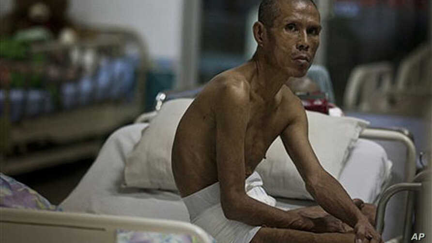An unidentified HIV/AIDS patient looks on from the isolation ward at Wat Prabat Nampu, in Lopburi, Thailand, 05 Oct 2009