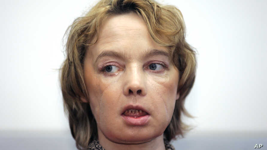 FILE -  Isabelle Dinoire, the woman who received the world's first partial face transplant with a new nose, chin and mouth, in an operation on Nov. 27, 2005.