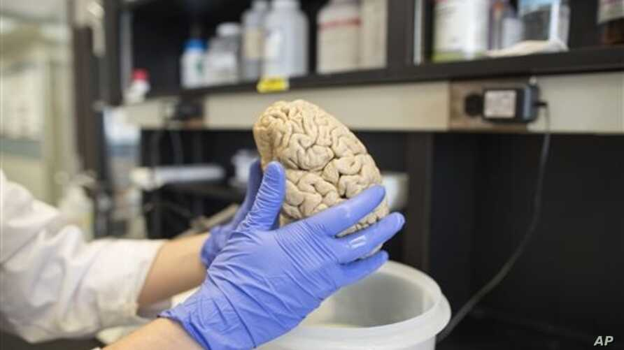 Researcher holds human brain in laboratory at Northwestern University's cognitive neurology and Alzheimer's disease center, Chicago, July 29, 2013 file photo.
