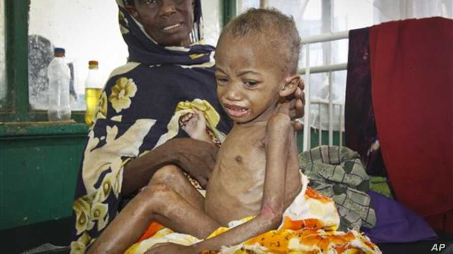 Abdulahi Musa, a malnourished five-year-old boy, sits on his mother's lap at Banadir  hospital in Mogadishu, Somalia Tuesday, May 20, 2014. Much of Somalia has seen no or erratic rains in recent months and fighting between African Union forces and th