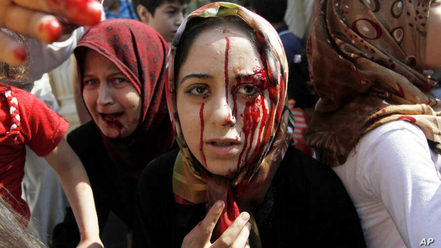 Injured Syrian women arrive at a field hospital after an air strike hit their homes in the town of Azaz on the outskirts of Aleppo, Syria, August 15, 2012.