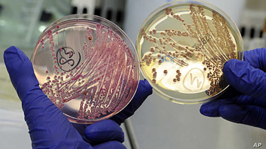 An employee holds petri dishes with bacterial strains of EHEC bacteria (bacterium Escherichia coli.) in the microbiological laboratory of the University Clinic Eppendorf- UKE in the northern German town of Hamburg, June 2, 2011