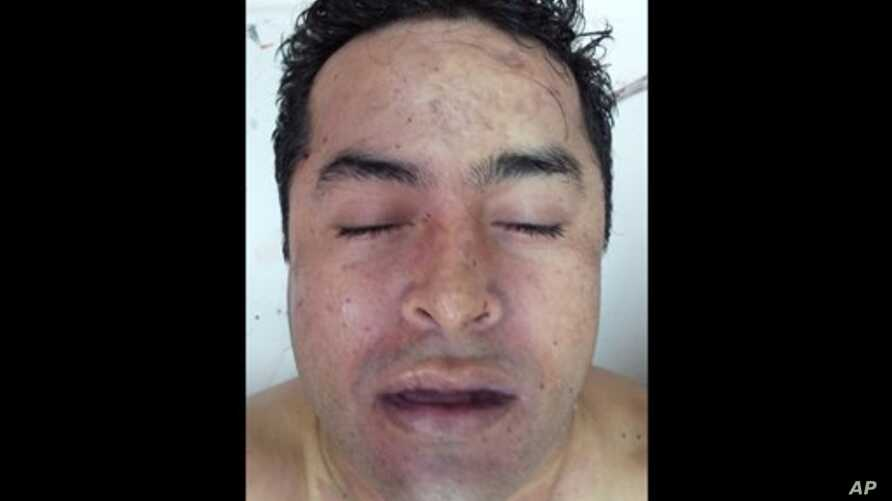 This photo released October 9, 2012 by Mexico's Navy allegedly shows the body of Zetas drug cartel leader and founder Heriberto Lazcano while in the possession of Mexico's Medical Forensic Service in Sabinas, Mexico.