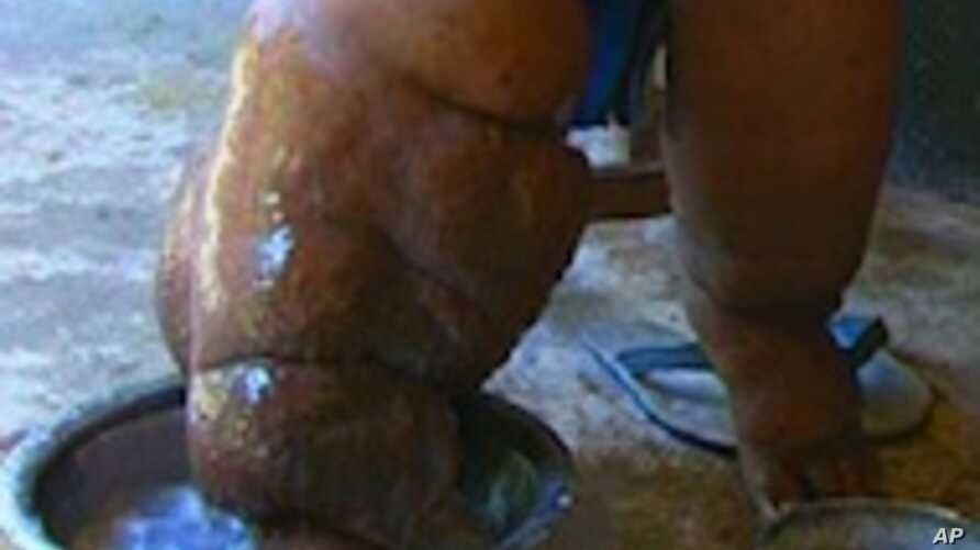 Elephantiasis Afflicts 120 Million in Africa, Asia