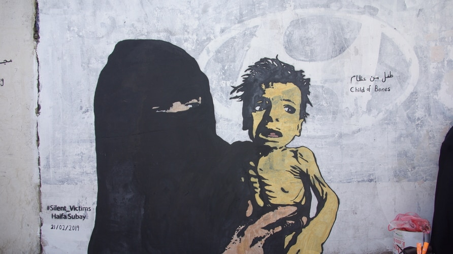 "A mural named ""A Boy of Bones,"" painted by Yemeni artist Haifa Subay. The mural seeks to warn about the risk of famine, which is threatening the lives of millions of children in Yemen."