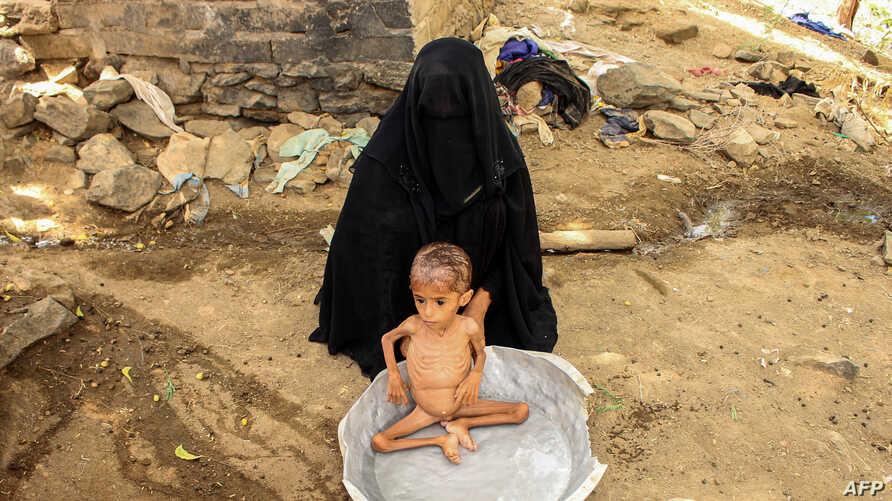 FILE - Moaz Ali Mohammed, a two-year-old Yemeni boy from an impoverished family in the Bani Amer region, who suffers from acute malnutrition, is bathed by his mother outside their house in the Aslam district in the northern Hajjah province, July 28, 2019.