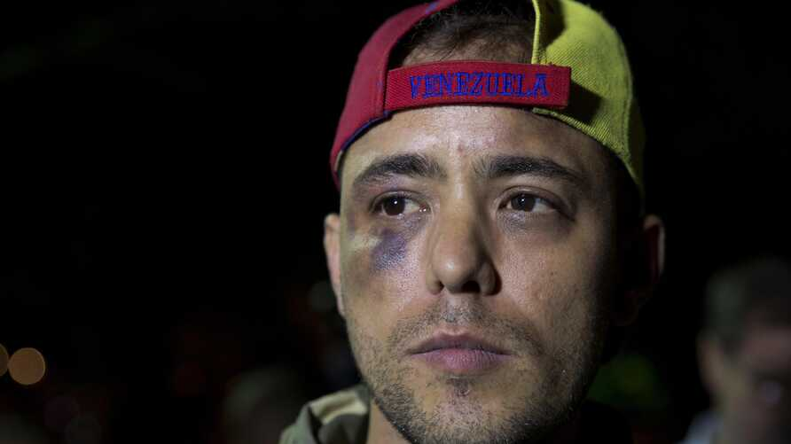 Venezuelan journalist Jesus Medina speaks with press in Caracas, Venezuela, Tuesday, Nov. 7, 2017. Medina said Tuesday that he…