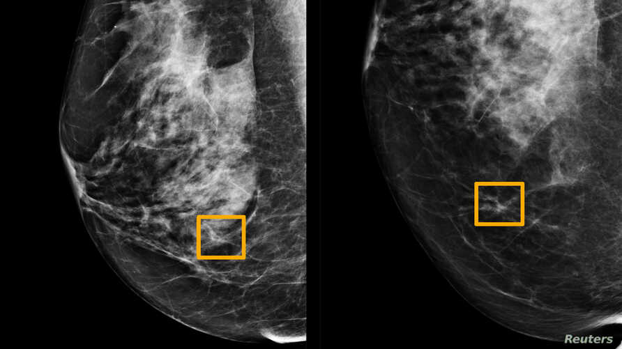 A yellow box indicates where an artificial intelligence (AI) system found cancer hiding inside breast tissue, in an undated…