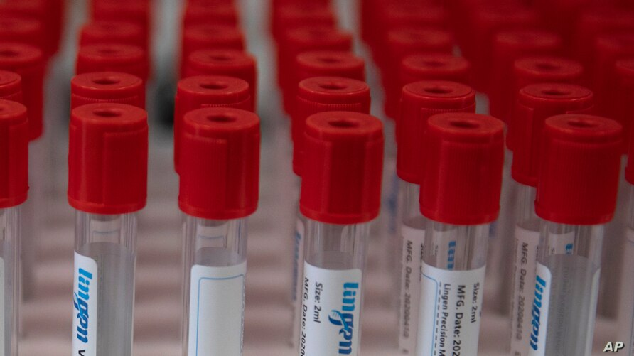 FILE - A case of test tubes is placed on a lab table during research on the coronavirus, at Johnson & Johnson subsidiary Janssen Pharmaceutical in Beerse, Belgium, June 17, 2020.