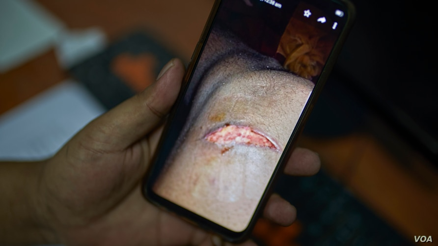 Ethiopian community activists show pictures of injuries sustained by refugees on July 27, 2020 in Cairo. (VOA/Hamada Elrasam)