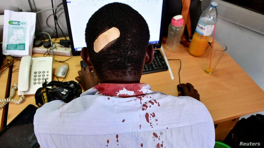 Paul Murungi, a journalist working with The New Vision newspaper is seen at his desk after he was injured following an attack by security officials, outside the United Nations Human Rights offices while on reporting duty, in Kampala, Uganda.