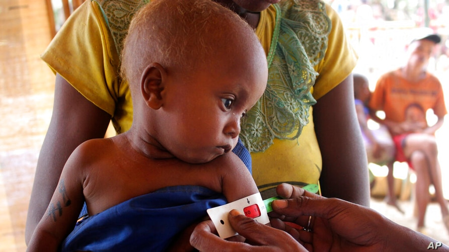 A child's arm is measured at a center set up by World Food Programme and Action Against Hunger, in the village of Beraketa, in…