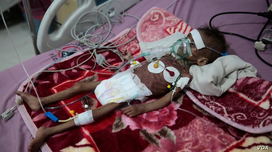 FILE - In this Nov. 3, 2020 file photo, a malnourished girl, Rahmah Watheeq, receives treatment at a feeding center at Al…