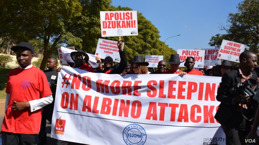 FILE - Continued attacks on albinos in Malawi led courts to give convicts death sentences as a deterrent. That ruling was changed April 28, 2021, when the Malawi's Supreme Court banned the death penalty. (Lameck Masina/VOA)