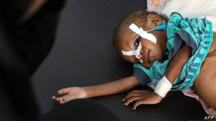 A malnourished child receives treatment at a malnutrition center in Yemen's third city of Taez, on July 3, 2021. - Yemen's…