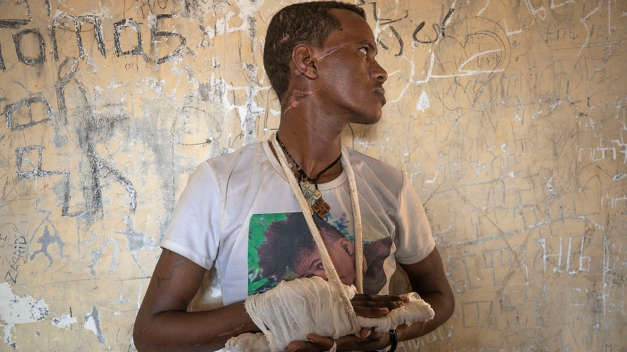 Ethnic Tigrayan survivor Abrahaley Minasbo, 22, from Mai-Kadra, Ethiopia, shows his wounds from machetes, inside a shelter, in…