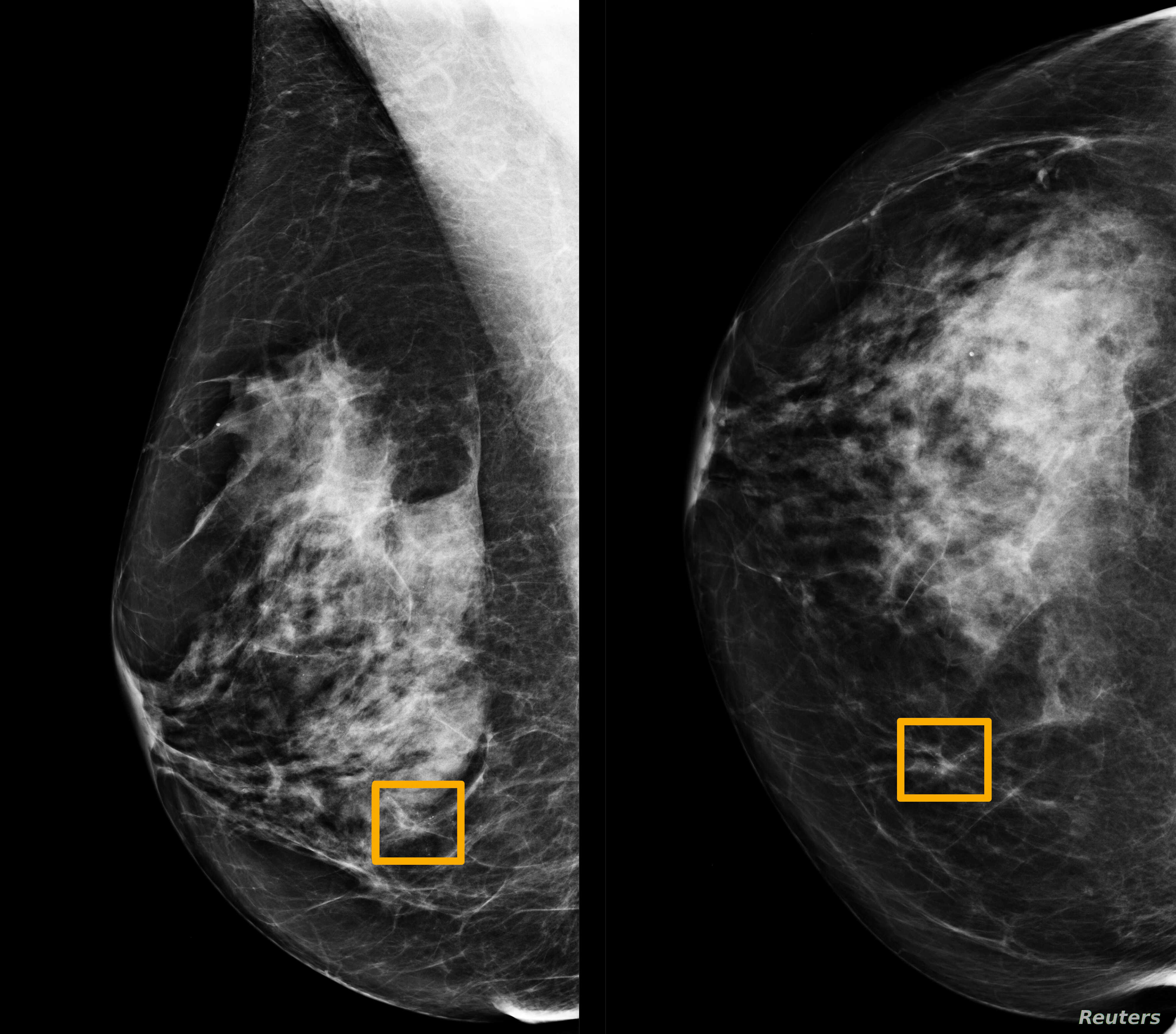 Study Finds Google System Could Improve Breast Cancer Detection