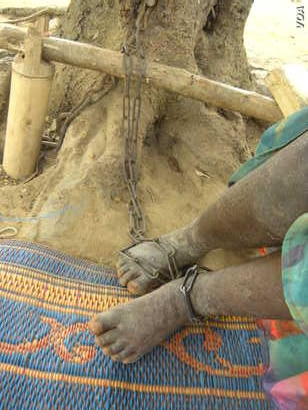This 2012 photo shows Victoria, a 10-year-old girl with a mental disability who was put in Jesus Divine Temple (Nyakumasi) Prayer Camp, where she was chained to a tree all day and slept on a mat in an open compound.