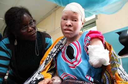 On February 11, at around 2:00 a.m., Maria Chambanenge, a 39-year-old woman with albinism was attacked by five armed men, allegedly including her husband, in Mkowe village, Rukwa region. The five suspects were subsequently arrested and the victim's...
