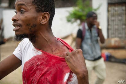 A man shows his injuries on September 20, 2016 near the offices of the main opposition party, Union for Democracy and Social Progress in the Democratic Republic of Congo.