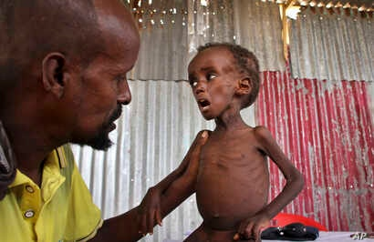 Father Ali Madey holds his malnourished child Mohamed Ali, 5, in their camp for the displaced on the outskirts of Mogadishu, Somalia , Thursday, May 25, 2017.