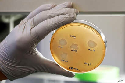 Yale University researcher Benjamin Chan, who studies viruses that attack bacteria, holds a petri dish containing Pseudomonas aeruginosa lung samples grown from patient Ella Balasa, at Osborne Memorial Laboratories, in New Haven, Conn., Jan. 17, 2019...