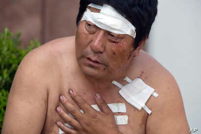 A man with his wounds bandaged rests outside a hospital receiving victims of an explosion in northeastern China's Tianjin municipality, Aug. 13, 2015.