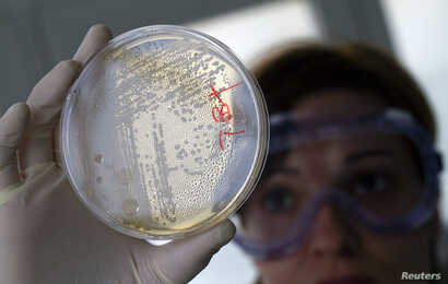 FILE - A laboratory worker looks for strains of E.coli bacteria in vegetable cells placed in a petri dish.