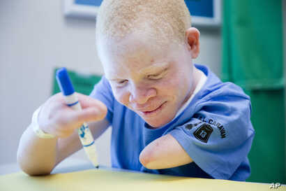 FILE - Emmanuel Festo Rutema works with occupational therapist Alexis Jacobs, Aug. 27, 2015, at Shriners Hospital for Children in Philadelphia. Rutema and four other children from Tanzania with the hereditary condition of albinism were in the U.S. to...