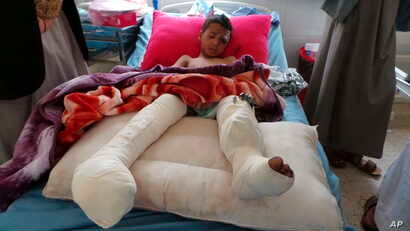 An injured child rests in a hospital a day after an airstrike in Saada, Yemen on Aug. 10, 2018.